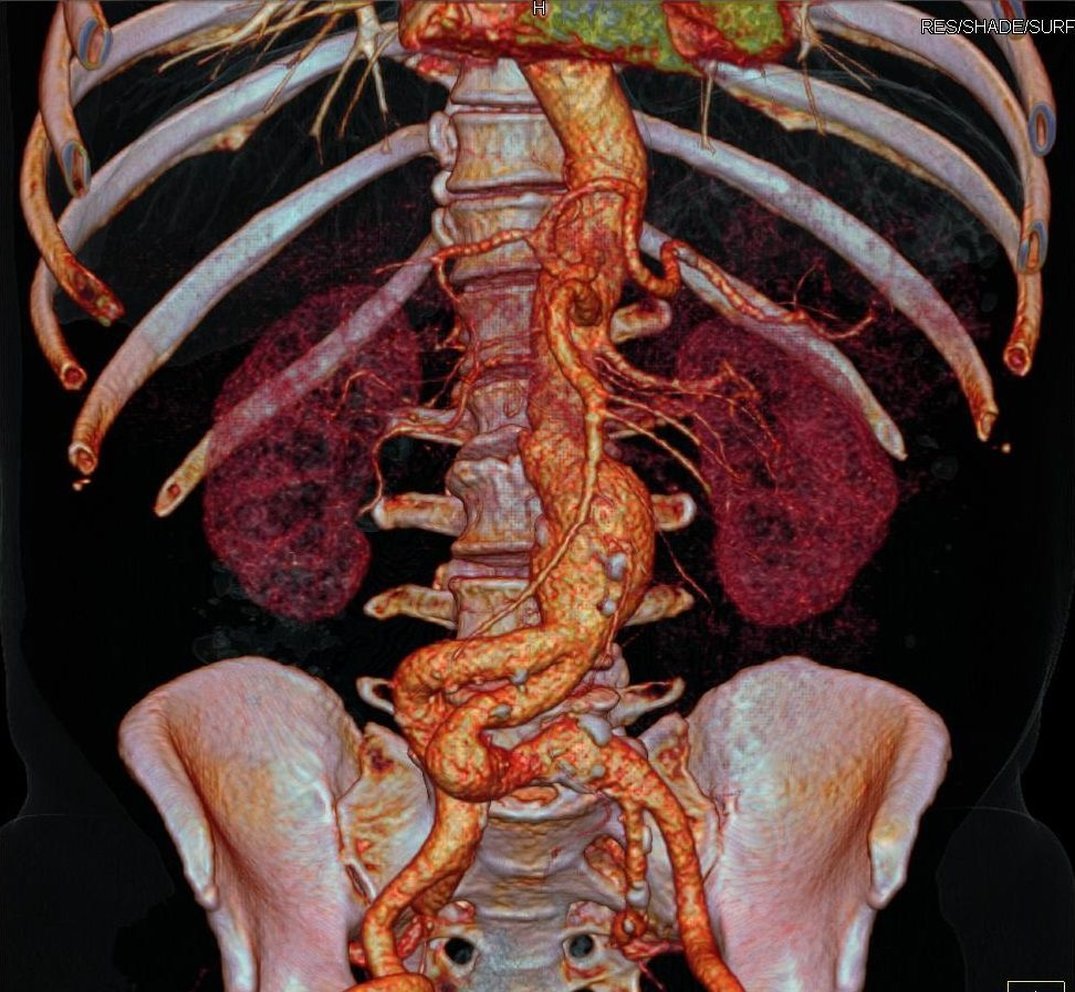 Computed Tomography Angiography Cta Charter Radiology