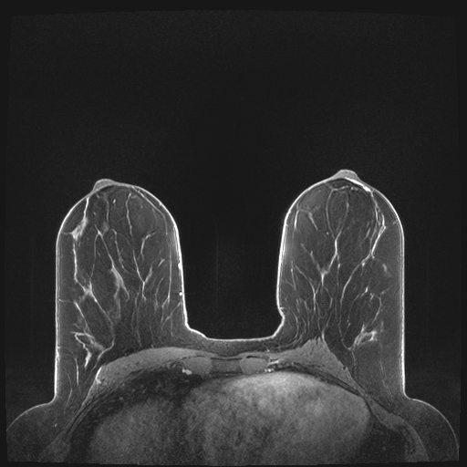 Body Mri Charter Radiology