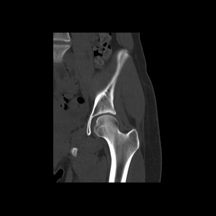 Orthopaedic (MSK) CT - Charter Radiology on radiology newsletter, radiology reports, radiology department, radiology brochures, radiology business cards, radiology signs, radiology history timeline, radiology books, radiology physician orders, radiology gifts, radiology quotes, radiology referral form, radiology requisition form, radiology peer review template, radiology icon, radiology background, radiology jokes, radiology research, radiology orders templates, radiology information system,